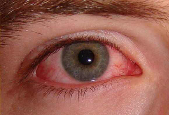 Особенности глаукомы, способы лечения, диагностика