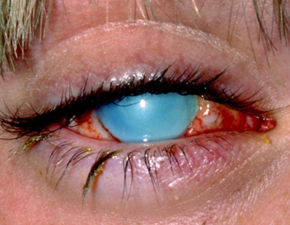 Чем вылечить глаза от сварки в домашних условиях 884