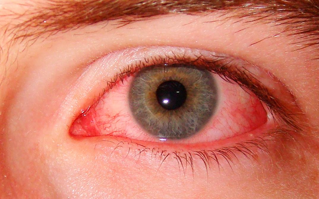Дёргаются глаз веко мышцы лица нервный тик
