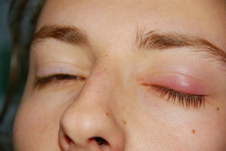 Что сделать в домашних условиях при ячмене на глазу