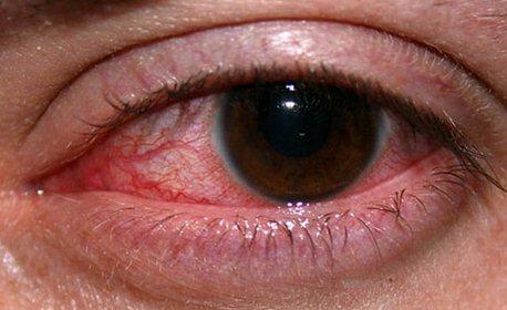пораженный глаз