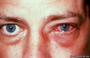 острая болезнь
