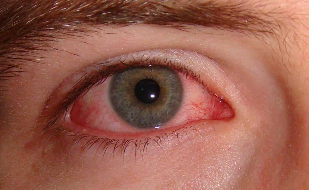 розовый глаза