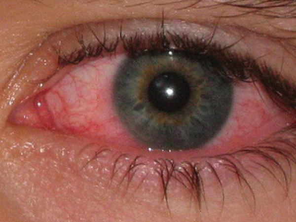 воспаленый глаз