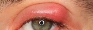 глазной