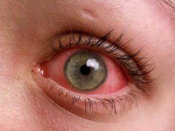 конъюнктивит на глазах