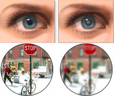 Незрелая катаракта: классификация и особенности патологии