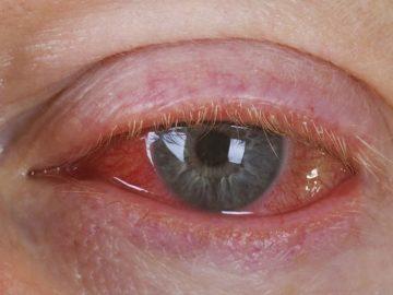 красные глаза от конъюнктивита