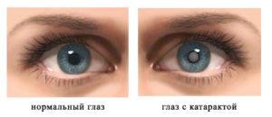 вид катаракты