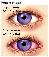 видимость