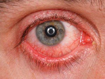 красный глаз от конъюнктивита