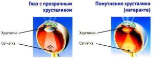 симптом патологии