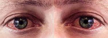 причины красных глаз