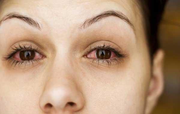 два красных глаза