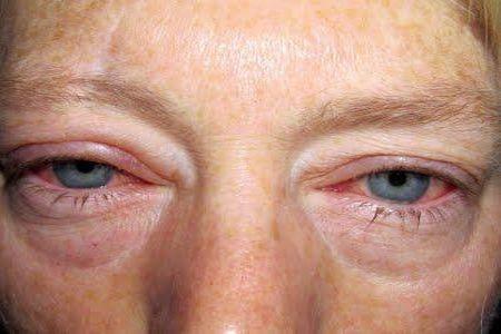 глаза от конъюнктивита