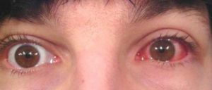 вид глаза