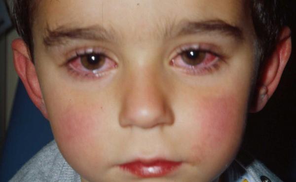 Лечение глаз у детей: причины, частые заболевания и их профилактика