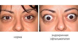 как выглядит офтальмопатия