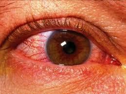 причины отека зрительного нерва