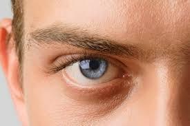 причина глаукомы