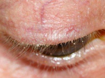 Демодекоз в офтальмологии
