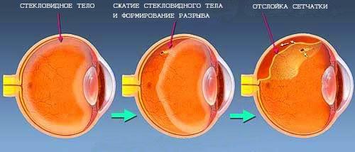 Как происходит отслойка сетчатки глаза