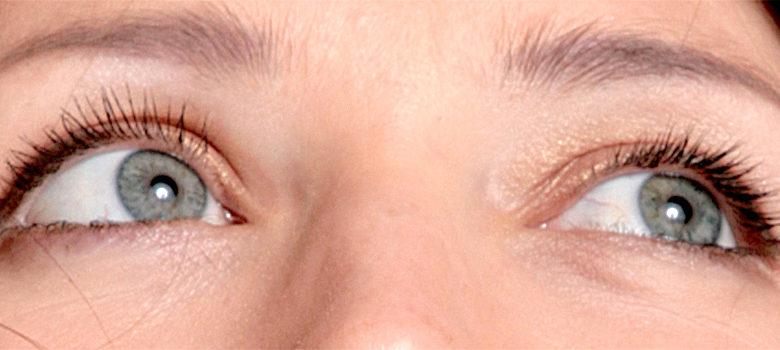 причины бельма на глазу