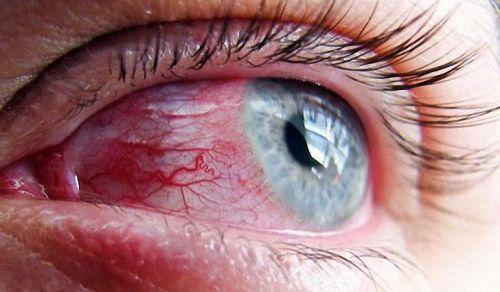 глазной ожог