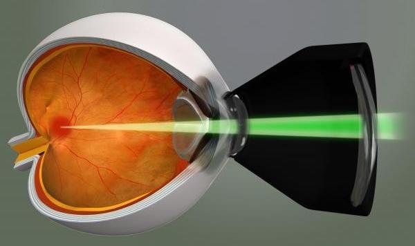 лечение диабетической ретинопатии