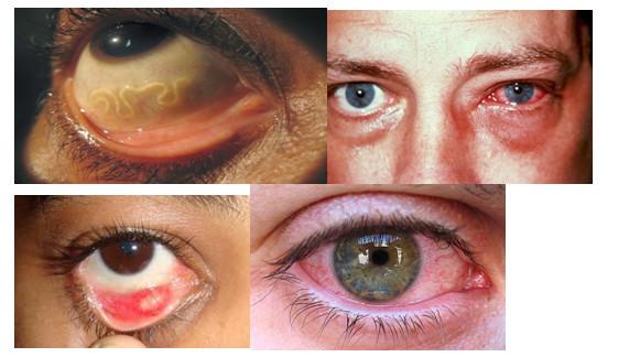 глаза при паразитах
