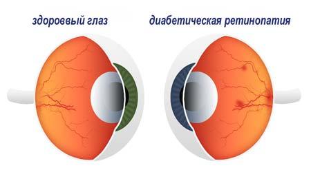 ретинопатия причины