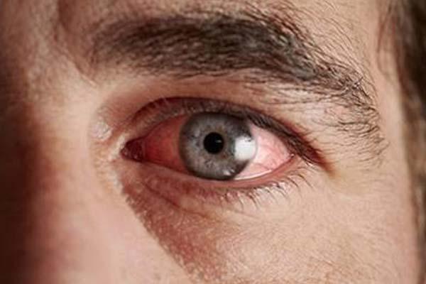 деабетическая ретинопатия вид