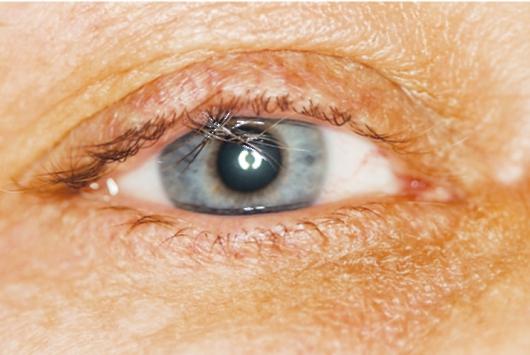 глаза при болезни