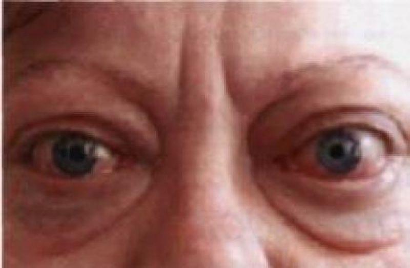 причины выпученных глаз