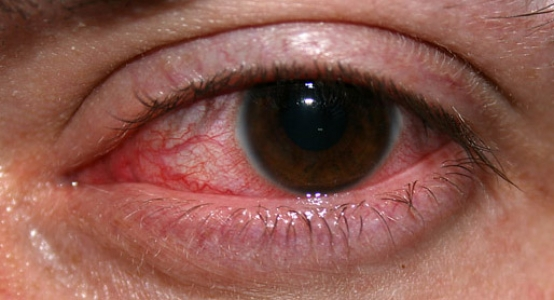 травмированный глаз