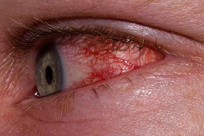 признаки красных глаз