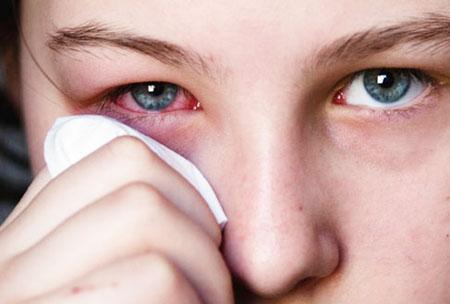причины покраснений глаз