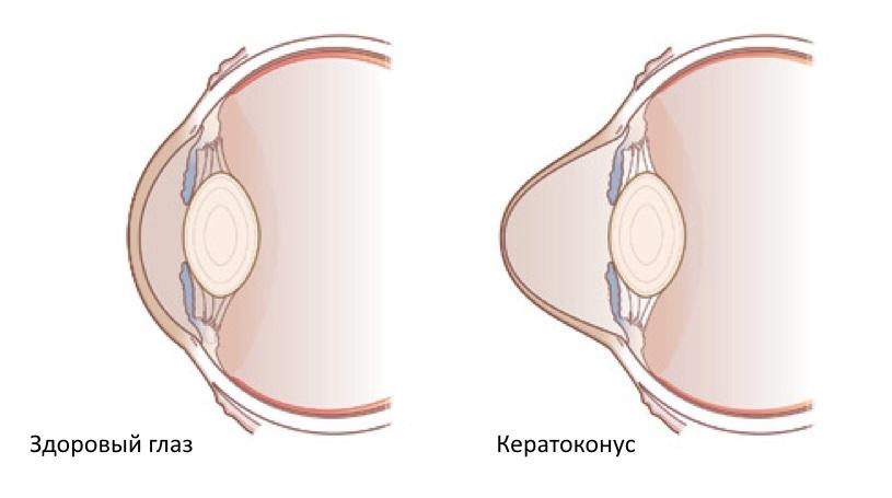 кератоконус и симптомы