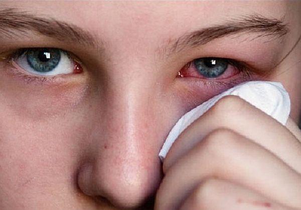 слезотечение и краснота глаз