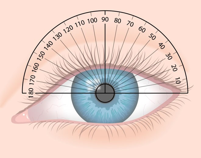 Лечение астигматизма и амблиопии, причины возникновения