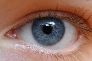 глаза при астигматизма