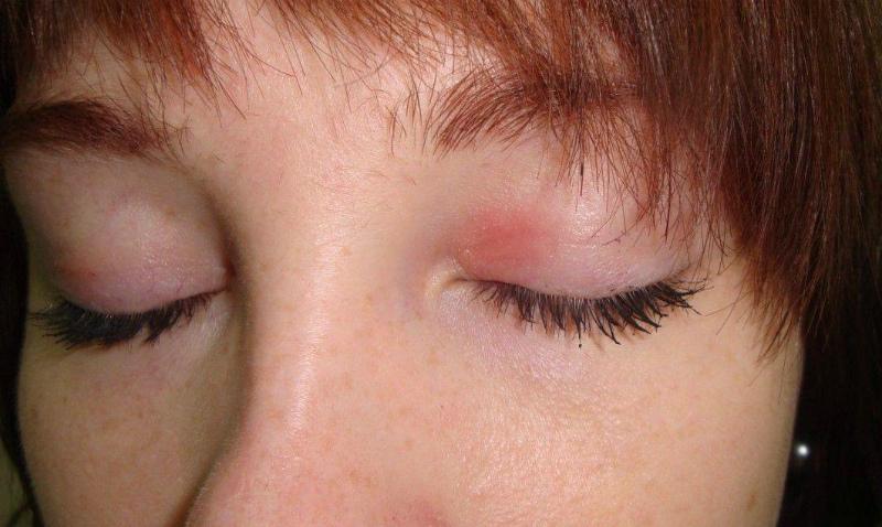 Причина возникновения дерматита на веках и лечение