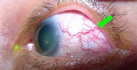 паразит в глазу