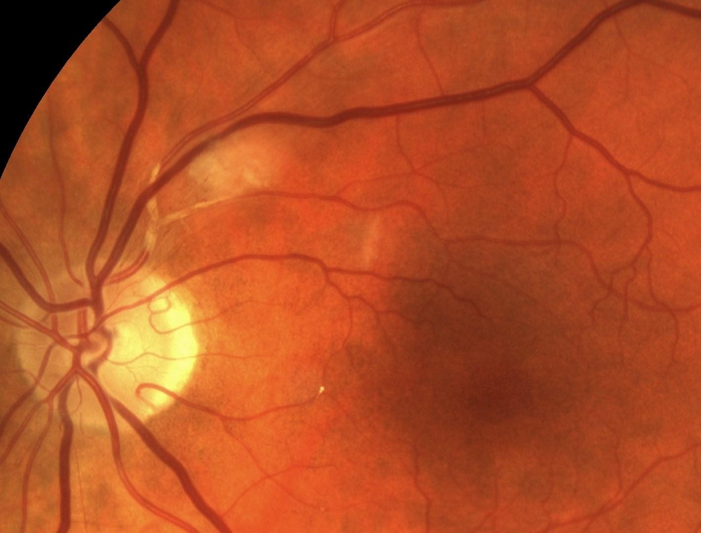 вид ретинопатии