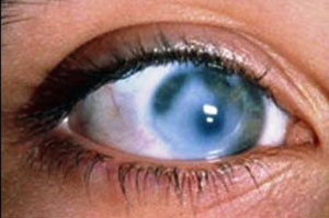 бельмо и глаз