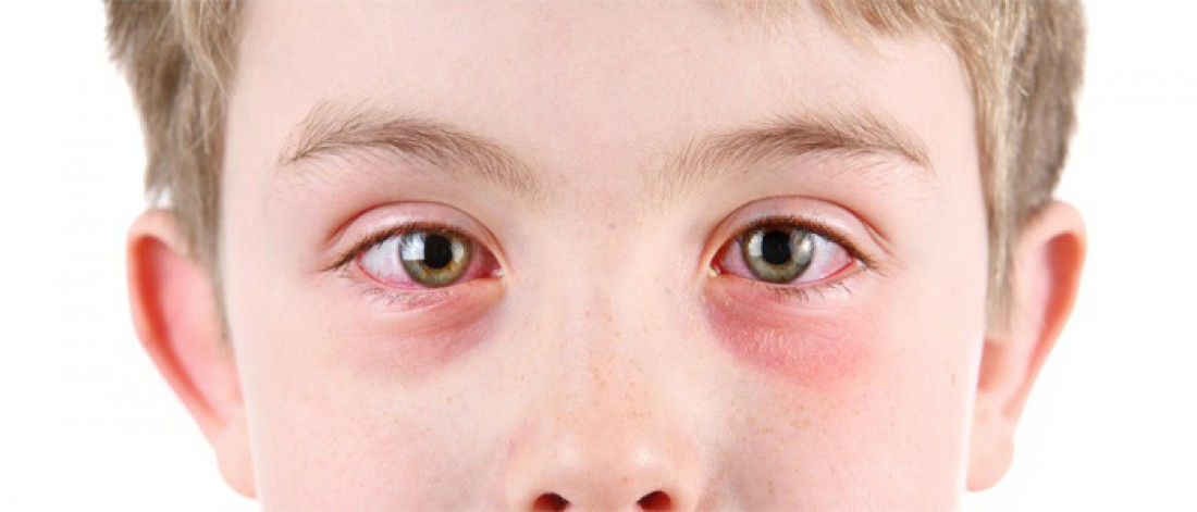 гиперемия глаз у ребенка