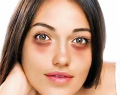 симптомы синяков под глазами