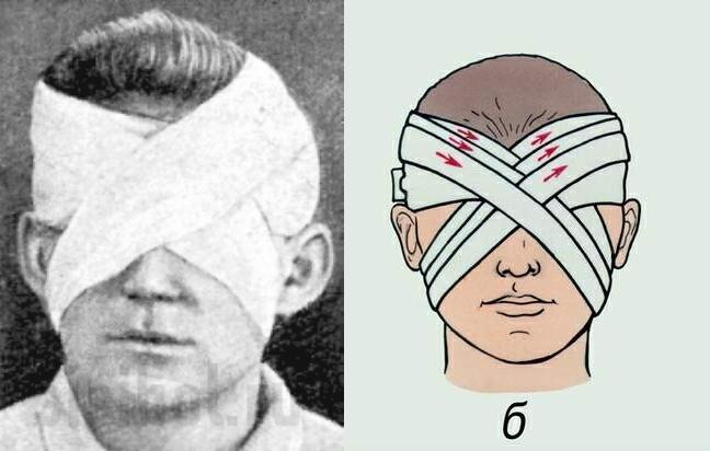повязка на глаза