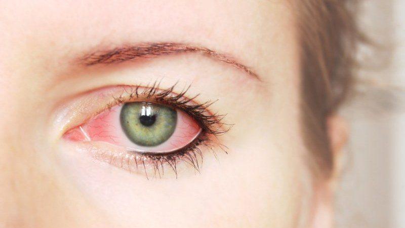 глазной кератит