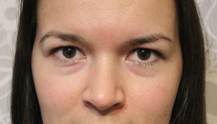 лечение отеков под глазами